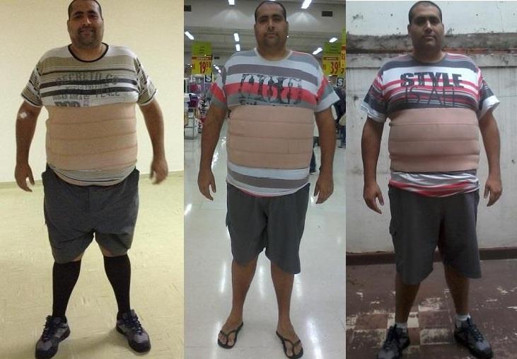 Como usar os bandaids chineses para a perda de peso